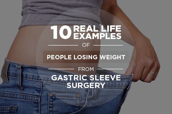 10 Real Life Examples of People Losing Weight from Gastric Sleeve Surgery